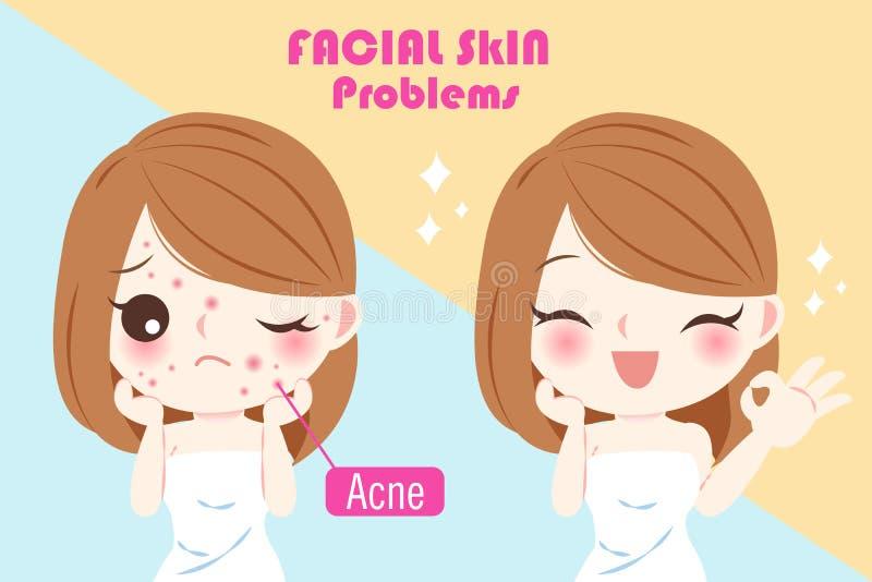 Femme avec le problème d'acné illustration libre de droits