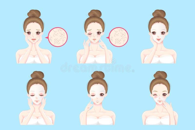 Femme avec le problème de soins de la peau illustration stock
