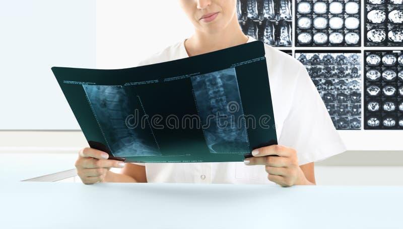 Femme de radiologue vérifiant le rayon X, soins de santé, concept médical image libre de droits