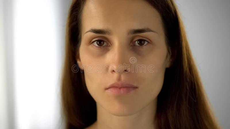 Femme fatiguée avec les cercles noirs sous des yeux regardant la caméra, manque de sommeil photographie stock libre de droits