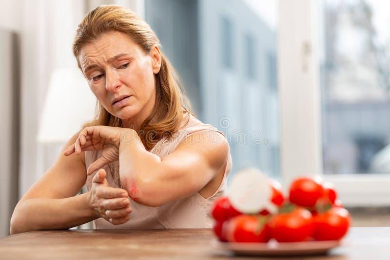 Femme mûre avec la peau sensible ayant l'allergie à de la nourriture image libre de droits