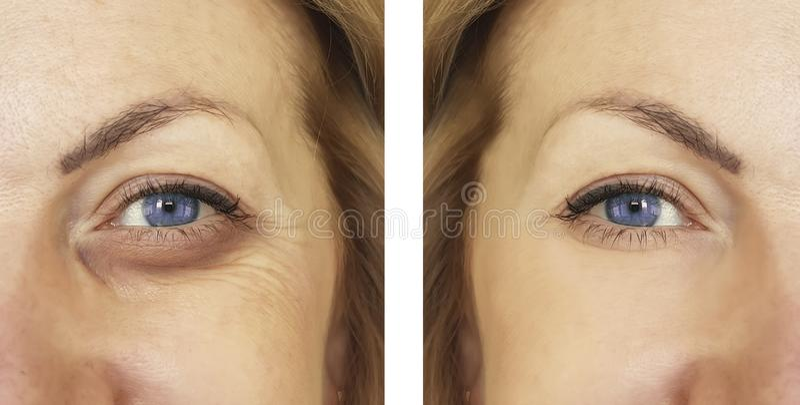 Femme, oeil gonflé avant et après des procédures, treatm images libres de droits
