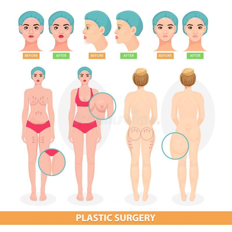 Femme patiente de vecteur de chirurgie plastique avant facelifting chirurgical d'opération ou ascenseur anti-vieillissement facia illustration de vecteur