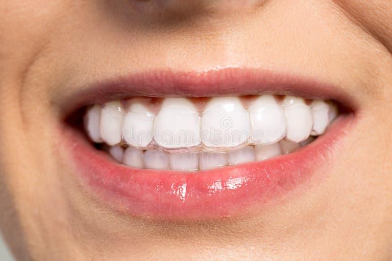 Femme portant l'entraîneur orthodontique de silicone photos stock