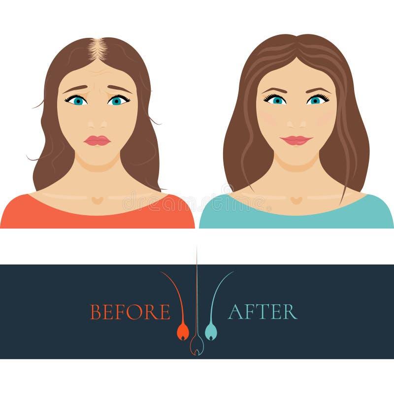 Femme presque chauve avant anf après traitement de cheveux illustration de vecteur