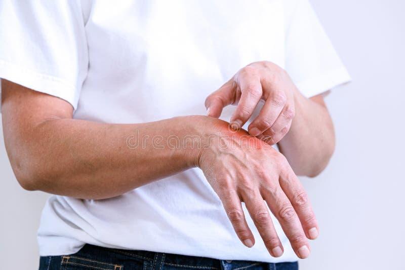 Femme rayant un démangeaison Peau sensible, sympt?mes d'allergie alimentaire, irritation images stock