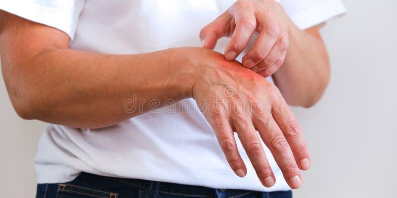 Femme rayant un démangeaison Peau sensible, sympt?mes d'allergie alimentaire, irritation photos libres de droits