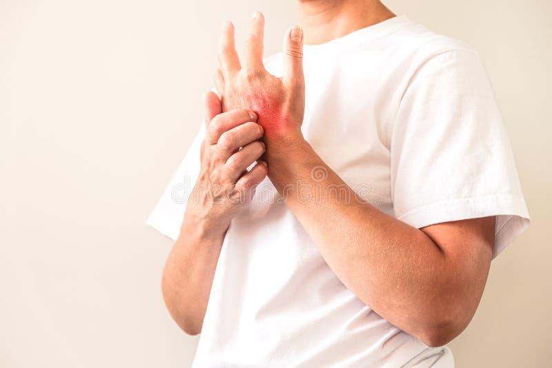 Femme rayant un démangeaison Peau sensible, sympt?mes d'allergie alimentaire, irritation image libre de droits