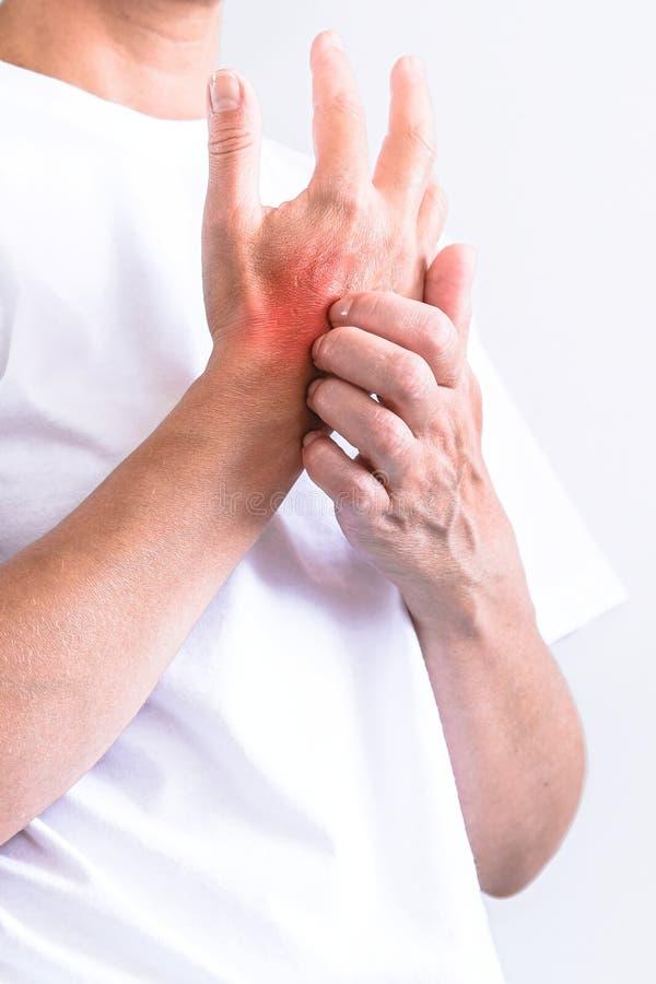 Femme rayant un démangeaison Peau sensible, sympt?mes d'allergie alimentaire, irritation photo libre de droits
