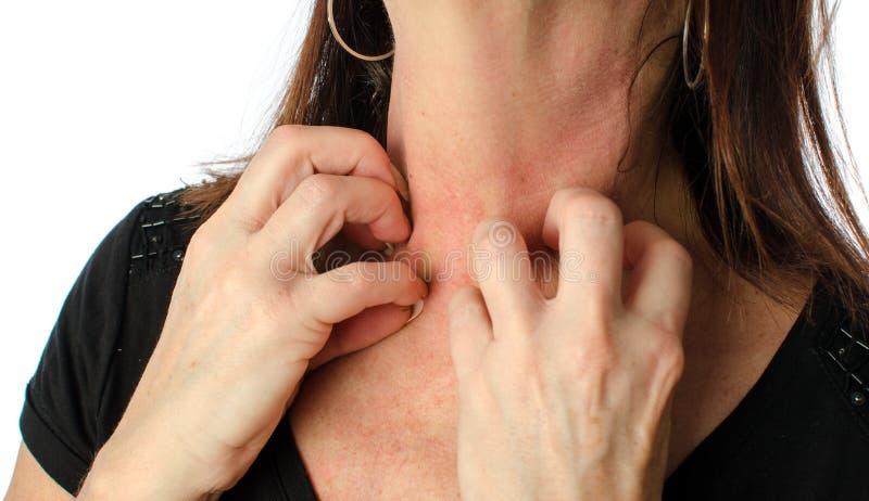 Femme se grattant le cou image libre de droits