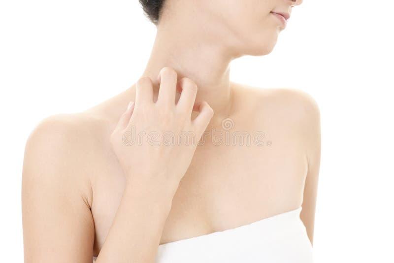 Femme se grattant le cou irritant avec l'éruption d'allergie images libres de droits