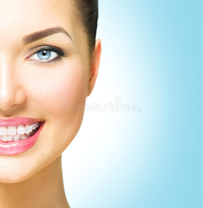 Femme souriant avec les accolades en céramique sur des dents photo libre de droits