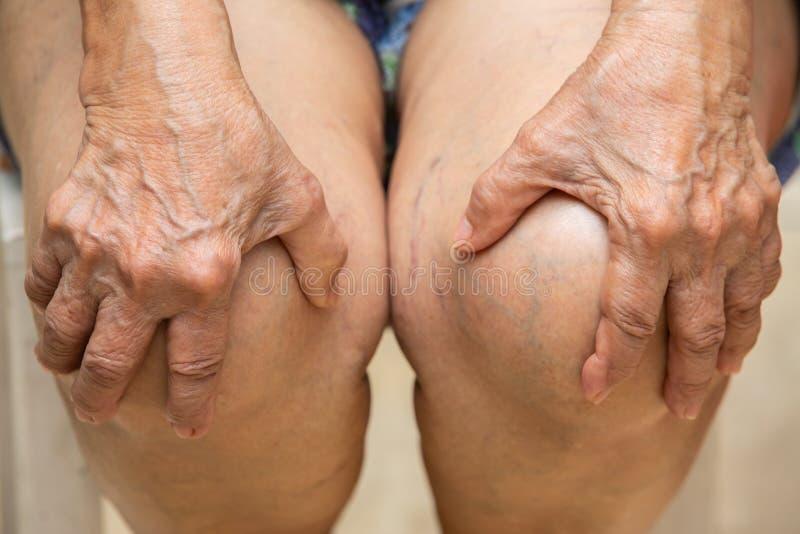 Femme supérieure souffrant de la chaise se reposante de douleur de genou, massant son genou douloureux à la main photos stock