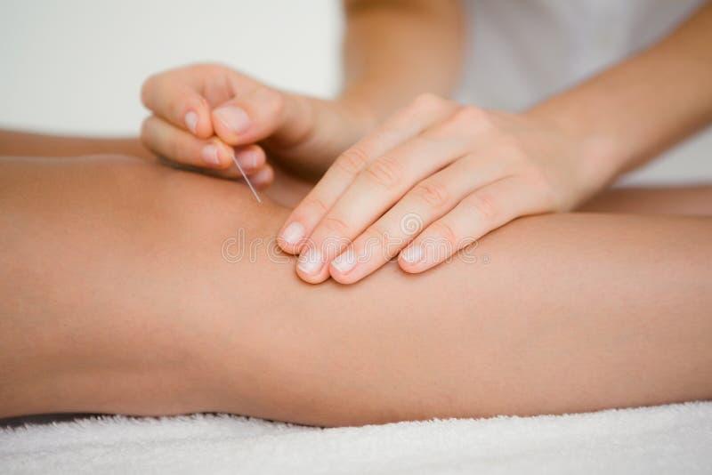 Femme tenant une aiguille dans une thérapie d'acuponcture image libre de droits