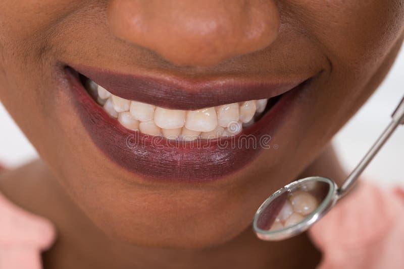 Femme vérifiant ses dents photos stock