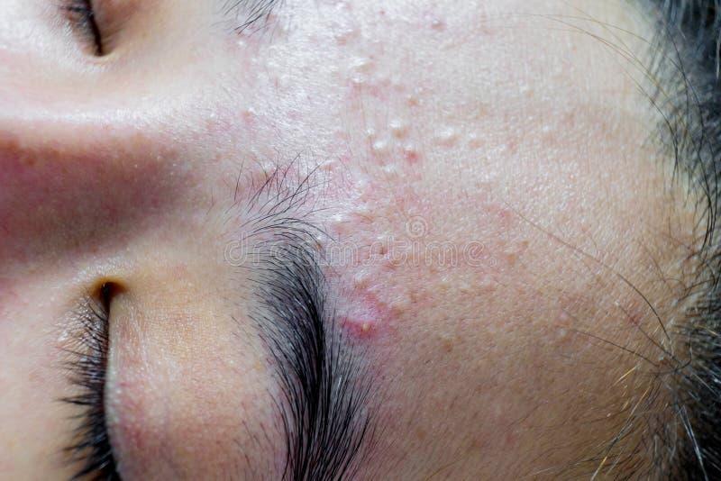 Femmes de visage d'acné de plan rapproché images libres de droits