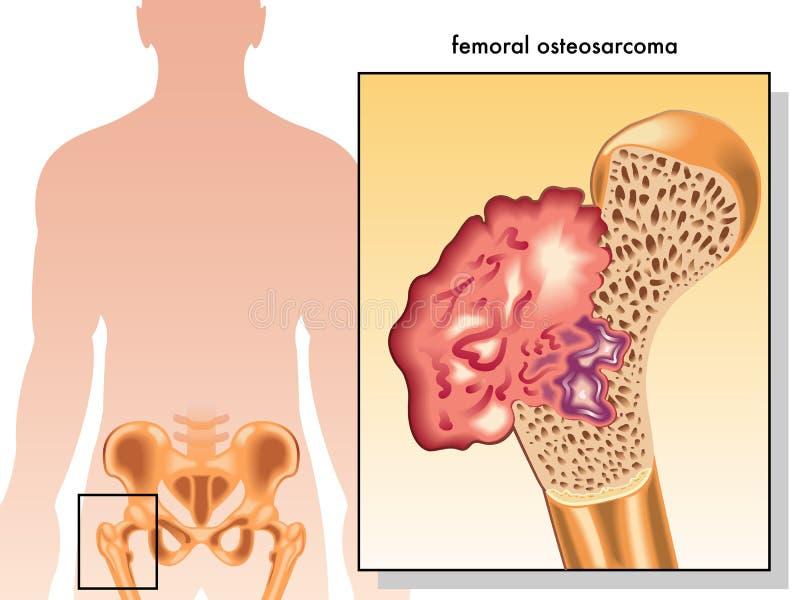 Femoral osteosarcoma vector illustration