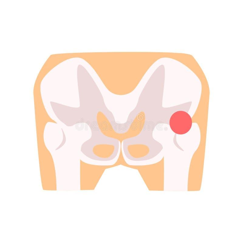 Femural gezamenlijke pijn, het beeldverhaal vectorillustratie van de heupverwonding vector illustratie
