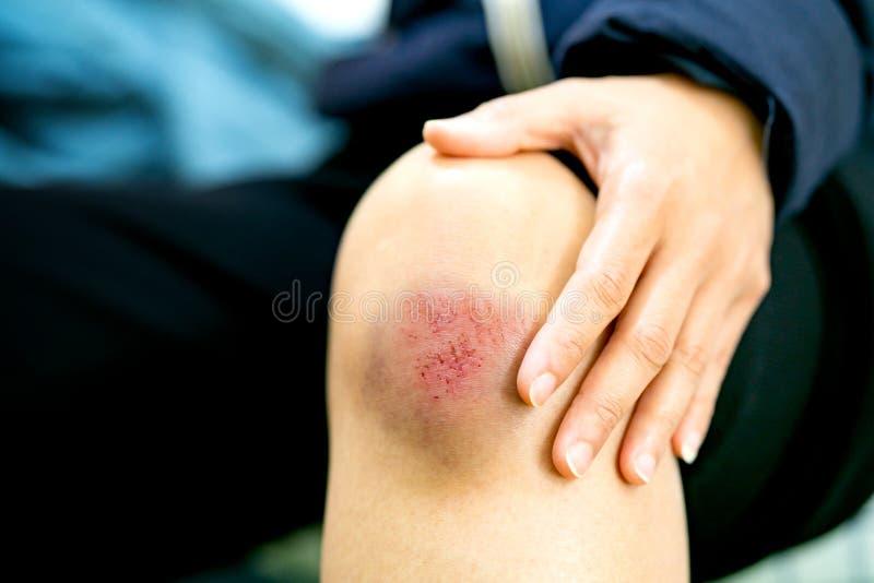 Ferida do risco no close up fêmea do joelho, nos cuidados médicos e no conceito da medicina imagem de stock