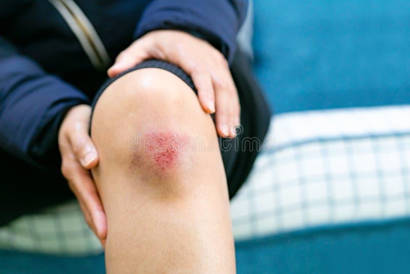 Ferida do risco no close up f?mea do joelho, nos cuidados m?dicos e no conceito da medicina foto de stock royalty free