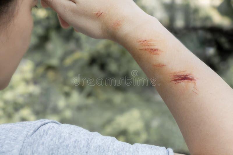 A ferida forma crostas na mão e no braço A ferida acontece durante a mulher que fere de cair na estrada fotos de stock royalty free