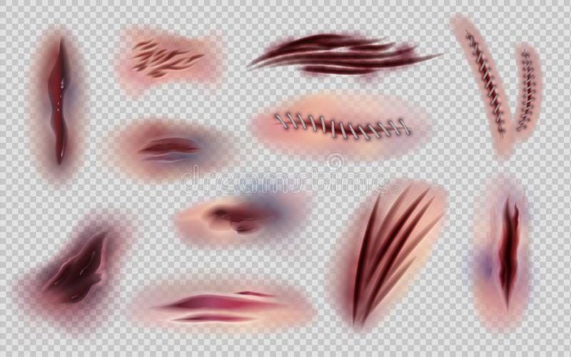 Feridas e pontos real?sticos Pele cortada e marcas e riscos isolados, equimoses e os ferimentos do corpo Cicatrizes do corpo do v ilustração do vetor