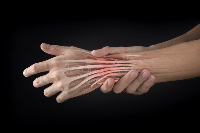 Ferimento do músculo do pulso fotos de stock