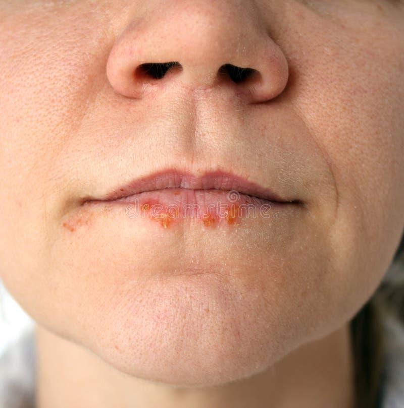 Ferite fredde Herpes labialis immagine stock