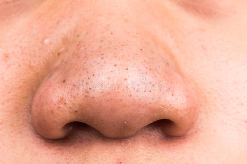 Fermé- des points noirs de bouton sur le nez photos libres de droits