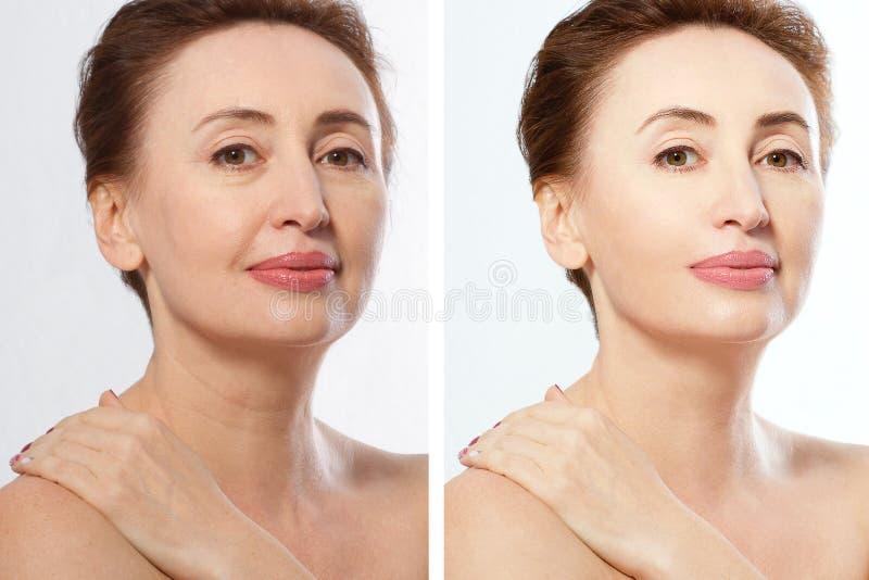 Fermez-la avant après le portrait de femme d'âge moyen de Beauty Spa et concept anti-vieillissement Isolé sur fond blanc Plastiqu images libres de droits