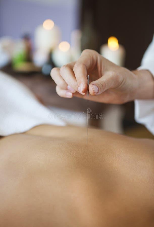 Fermez-vous d'une main plaçant l'aiguille d'acuponcture dessus de retour d'une femme images stock