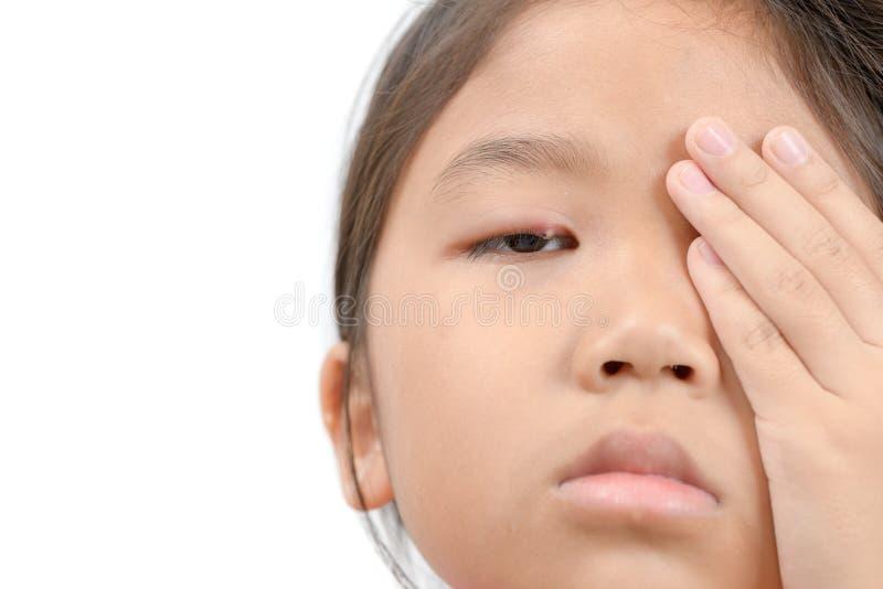Fermez-vous de l'infection de l'oeil asiatique de la petite fille une d'isolement photographie stock libre de droits