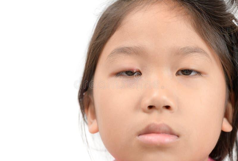 Fermez-vous de l'infection de l'oeil asiatique de la petite fille une d'isolement photo libre de droits