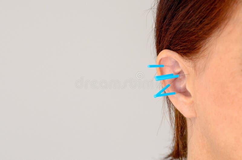 Fermez-vous des aiguilles d'acuponcture chez l'oreille de la femme photo libre de droits