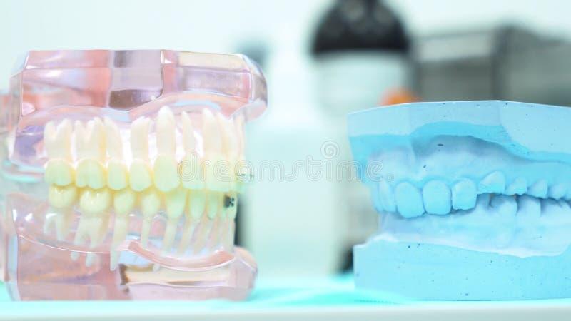 Fermez-vous pour les modèles humains d'une mâchoire à un bureau de dentiste, les dents s'inquiètent et le concept de prosthé photos stock