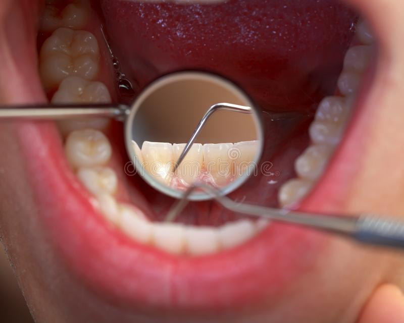 Examen dentaire étendu photos stock
