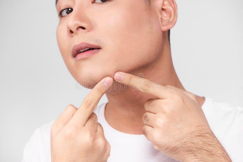 Fermez-vous vers le haut de la photo du jeune homme recherchant des acné sur son visage images libres de droits