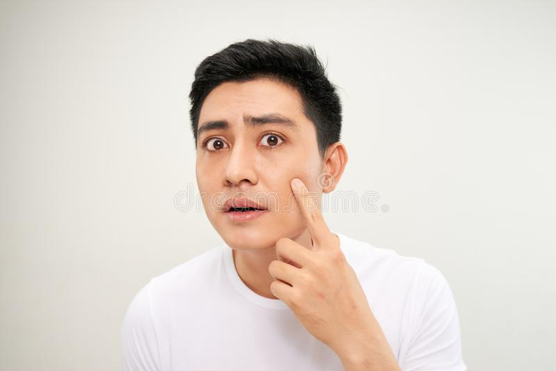 Fermez-vous vers le haut de la photo du jeune homme recherchant des acn? sur son visage image stock