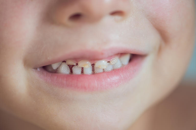 Fermez-vous vers le haut du tir des dents de lait avec des caries photographie stock libre de droits