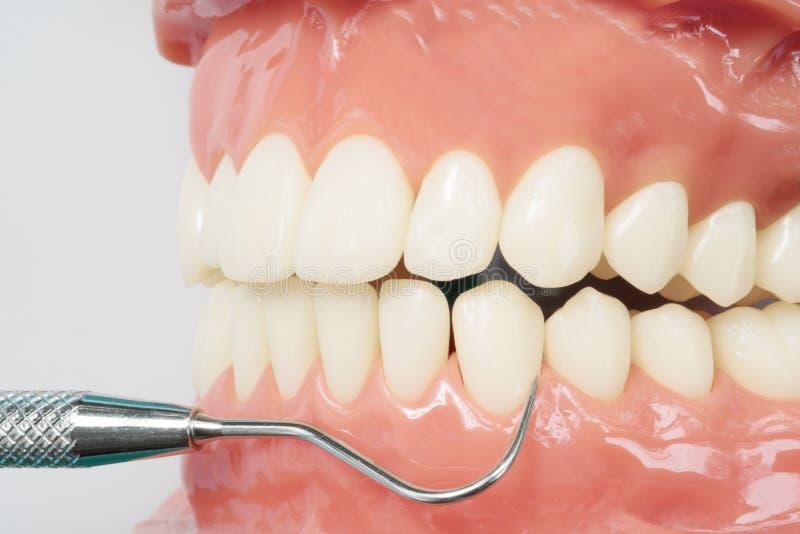 Ferramenta ortodôntica do modelo e do dentista foto de stock royalty free
