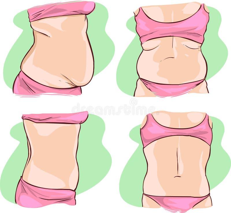 Fet behandling för buk före och efter vektor illustrationer