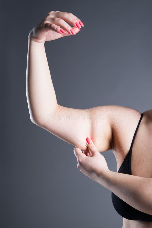 Fett- och celluliteborttagningsbegrepp, överviktig kvinnlig hand royaltyfri foto