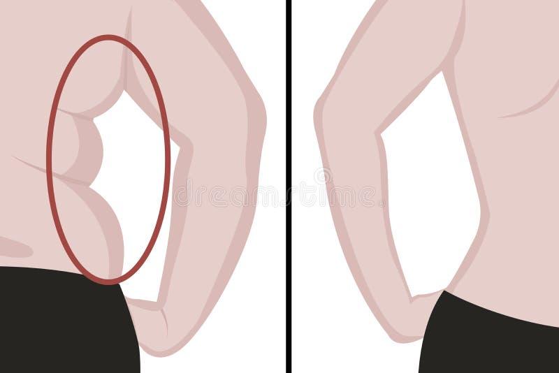 Fette und dünne Mädchen ` s Rückseite Fette Taille Fettabsaugung Vorher und nachher Frauenkörperkorrektur lizenzfreie abbildung