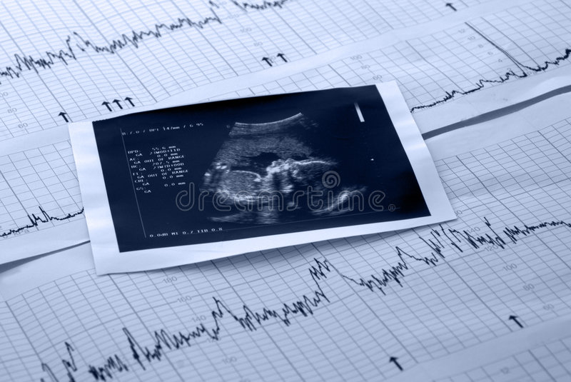 Fetus and electrocardiogram test stock images