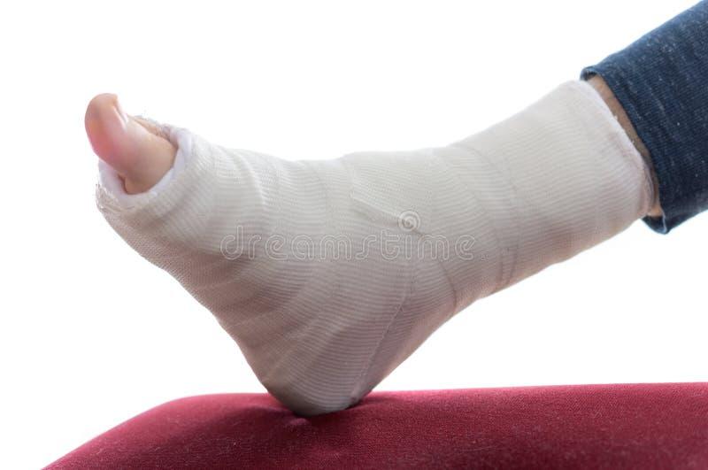 Fiberglass / Plaster leg cas. Close up of a fiberglass / Plaster leg cast and toes stock images