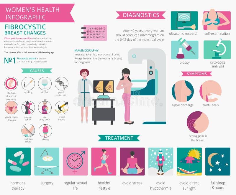 Fibrocystic borst verandert ziekte, medische infographic Diagnos stock illustratie
