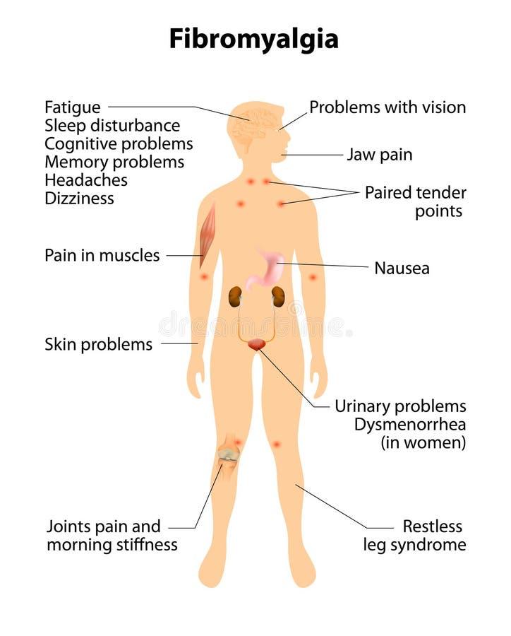 FIBROMYALGIA Muestras y síntomas ilustración del vector
