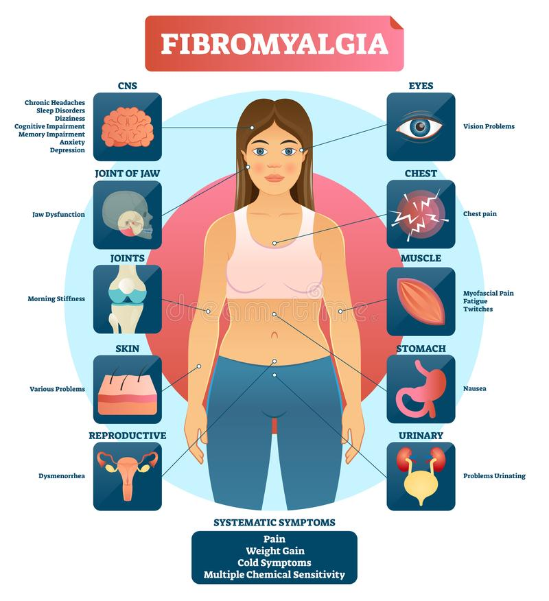 Fibromyalgia vector illustration. Diagnosis symptoms labeled diagram. Problems with jaw, joints, skin, muscle, eyes, urinary and reproductive system. Reason of stock illustration