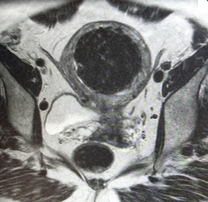 fibromyoma Mri  库存照片