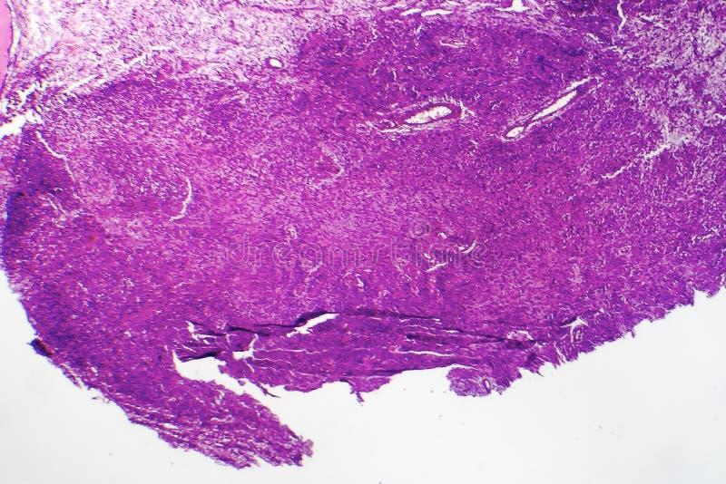 Fibrosarcoma elakartad tumör av fibroblasts royaltyfri bild